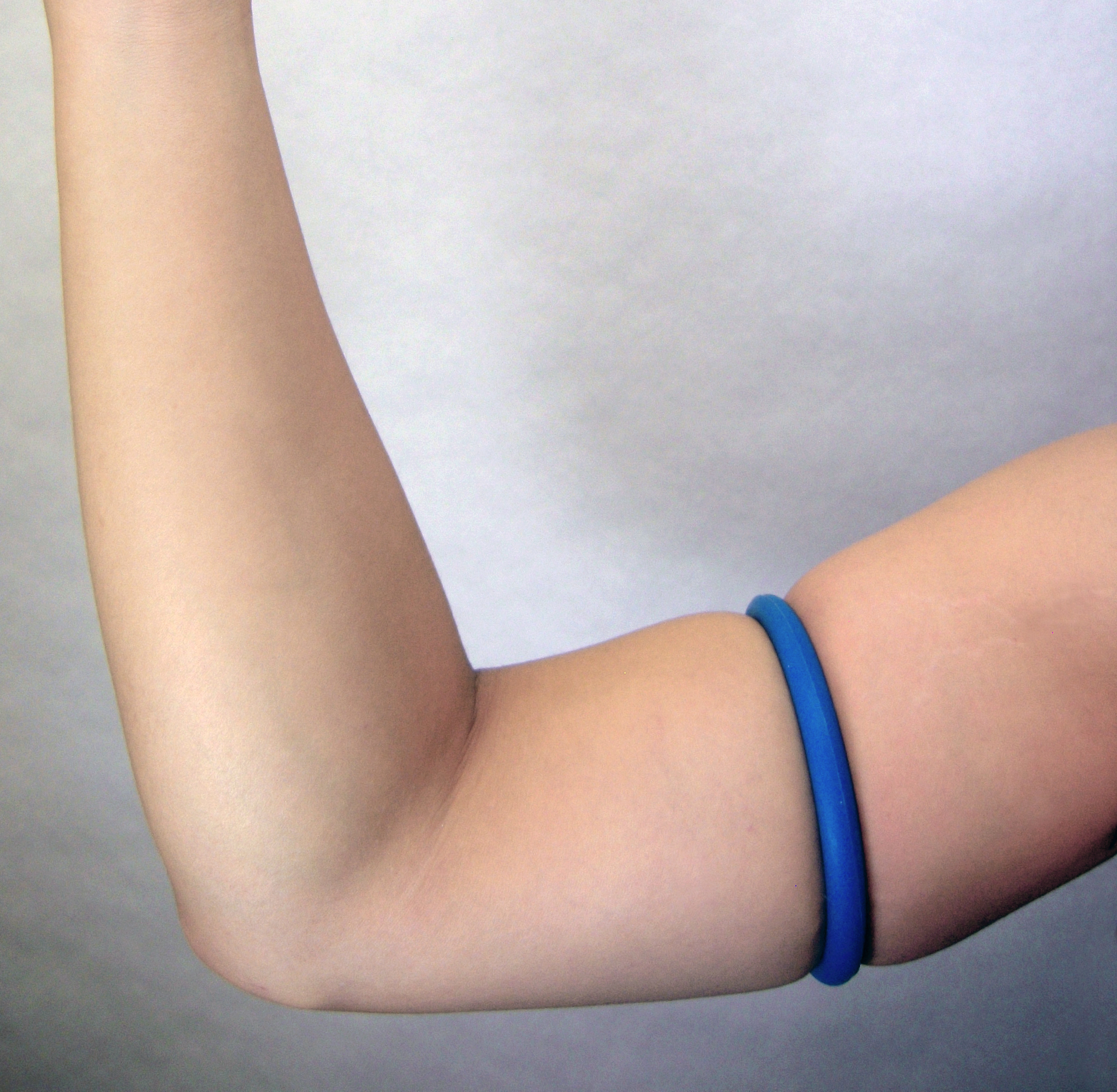 Elastic ring tourniquet on an arm