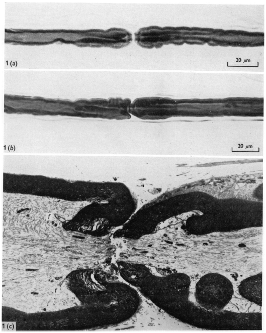 Nerve injury caused by high pressures and high pressure gradients.