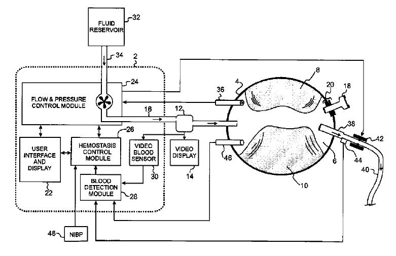 Block diagram of an internal tourniquet